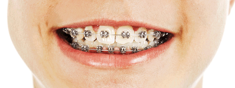 Braces on teeth work just like small business website content